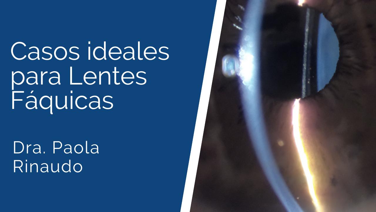 Casos-ideales-para-lentes-fáquicas Ateneos y Jornadas de Actualización