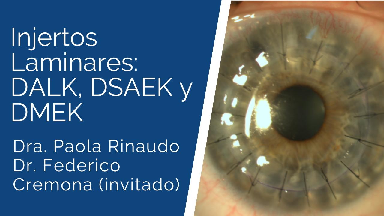 Injertos-laminares_-DALK-DSAEK-y-DMEK Ateneos y Jornadas de Actualización