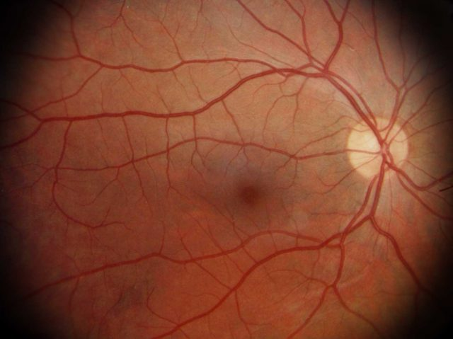 Retina.-640x479 Retina.
