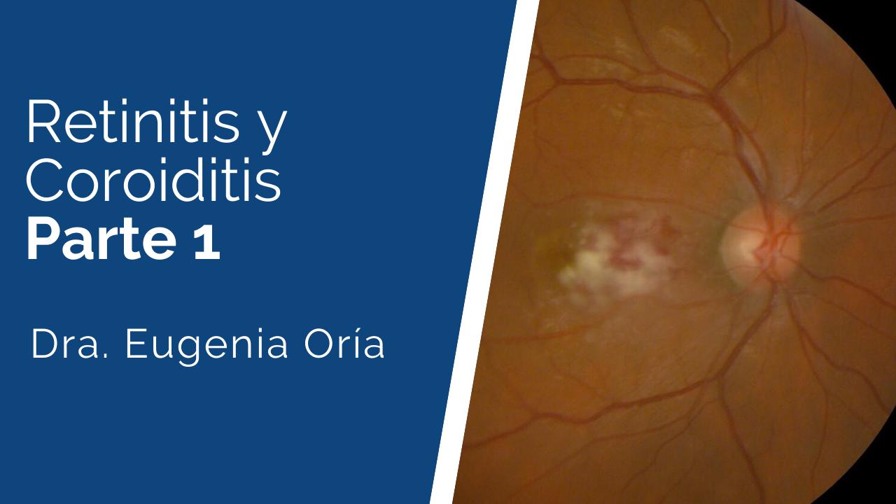 Retinitis-y-coroiditis-1 Ateneos y Jornadas de Actualización