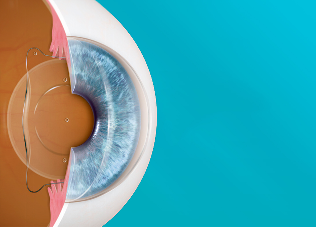 Sin-título-1 Otra alternativa para dejar los anteojos